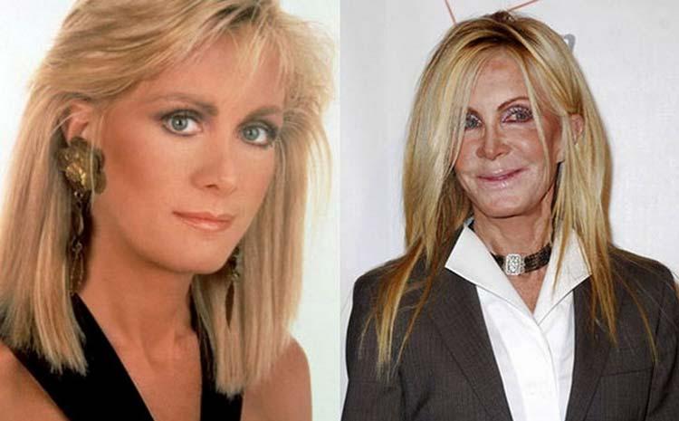 Joan-Van-Ark-before-after