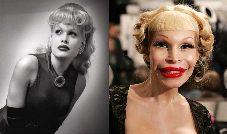 amanda-lepore-before-after