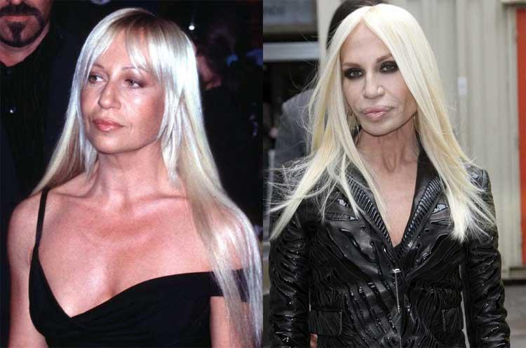 donatella-versace-face-surgery