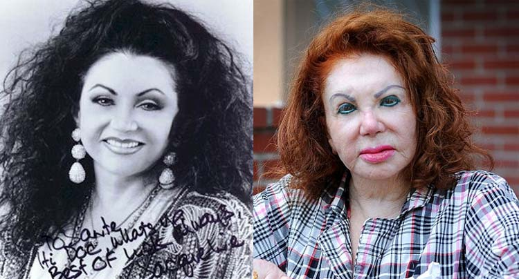 jackie-stone--before-after