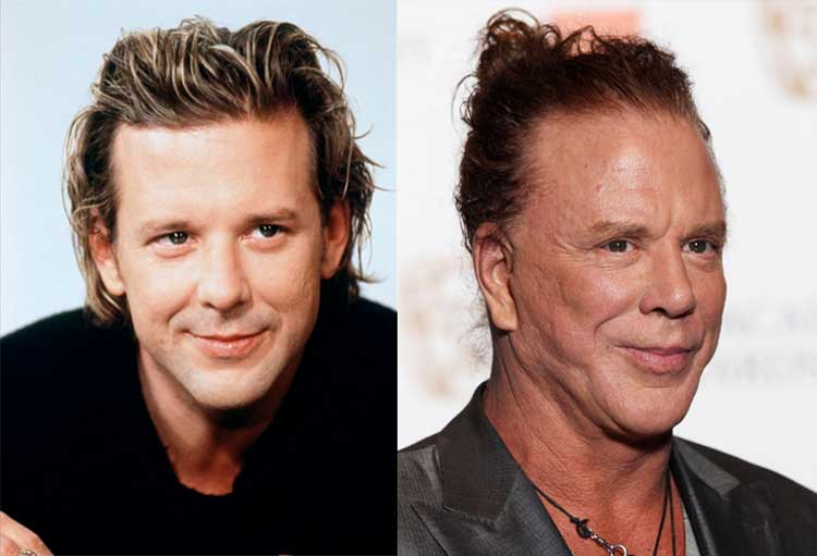 mickey-rourke-before-after