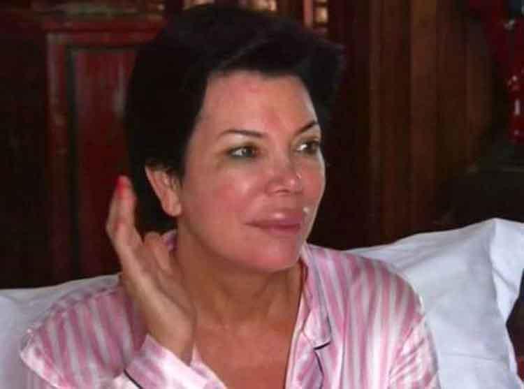 Kris Jenner Allergies